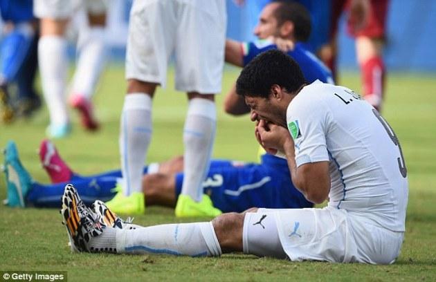 Piala Dunia 2014: Gigi Luis Suarez Kembali Memakan Korban